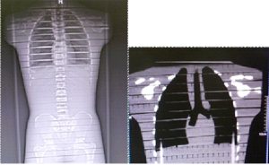 Rentgenový snímek modelu pacienta (vlevo) a rekonstrukce koronální roviny hrudi modelu po vyšetření na CT (vpravo)